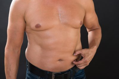 gynecomastia and gynecoplasty